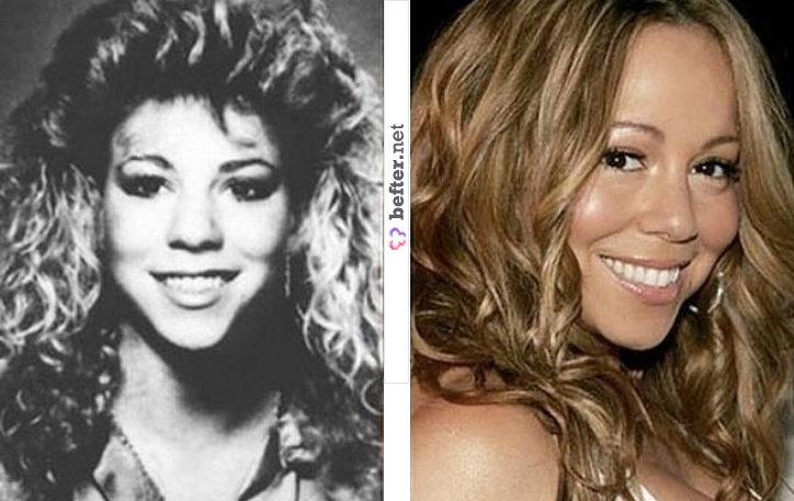 Mariah Carey Size After Implants http://www.befter.net/user/herculesfilho/beft/mariah-carey-before-and-after/