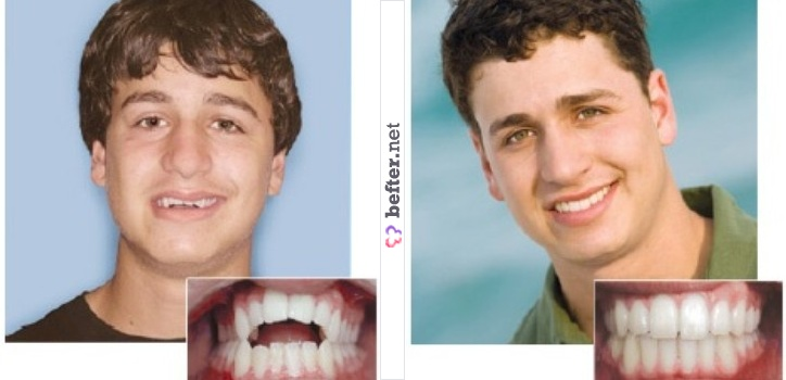 Foreskin Restoration before and After http://www.befter.net/user/herculesfilho/beft/dental-restoration/