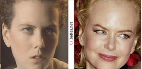 before-after-nicole-kidman-by- ...
