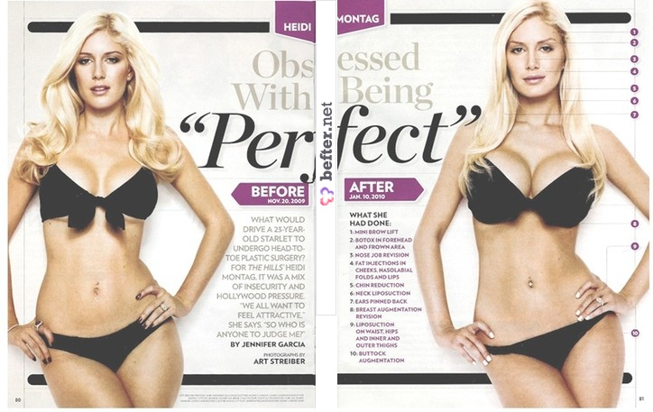 heidi montag surgery before after. Before and after Heidi Montag