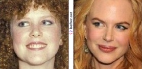 before-after-nicole-kidman-2- ...