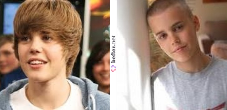 Justin Bieber careca | Before and After. Tsc,tsc!