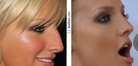 Ashlee Simpson nose job | Before and After