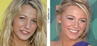 Blake Lively nose job | Before and After
