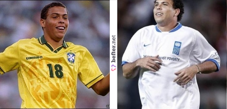 Ronaldo  | Before and After
