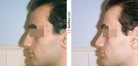 Rhinoplasty - Man | Before and After