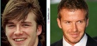 David Beckham | Before and After